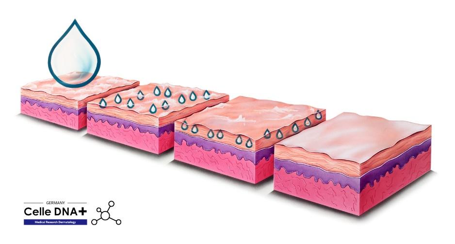 欧洲权威皮肤科测试机构——德国蔡勒皮肤实验室Celle DNA +